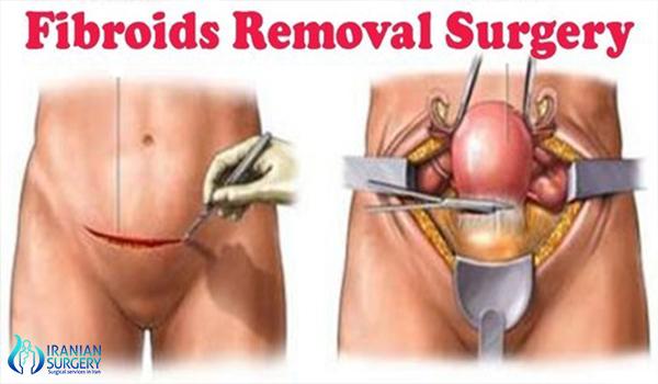 myomectomy surgery in iran