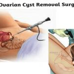 Ovarian cyst removal surgery cost in Iran
