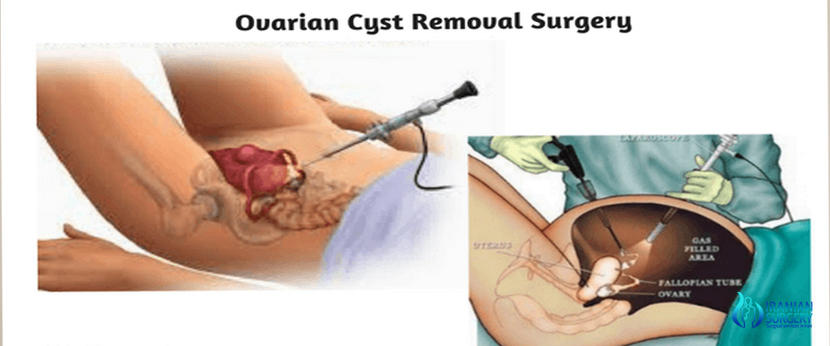ovarian cyst removal surgery in iran