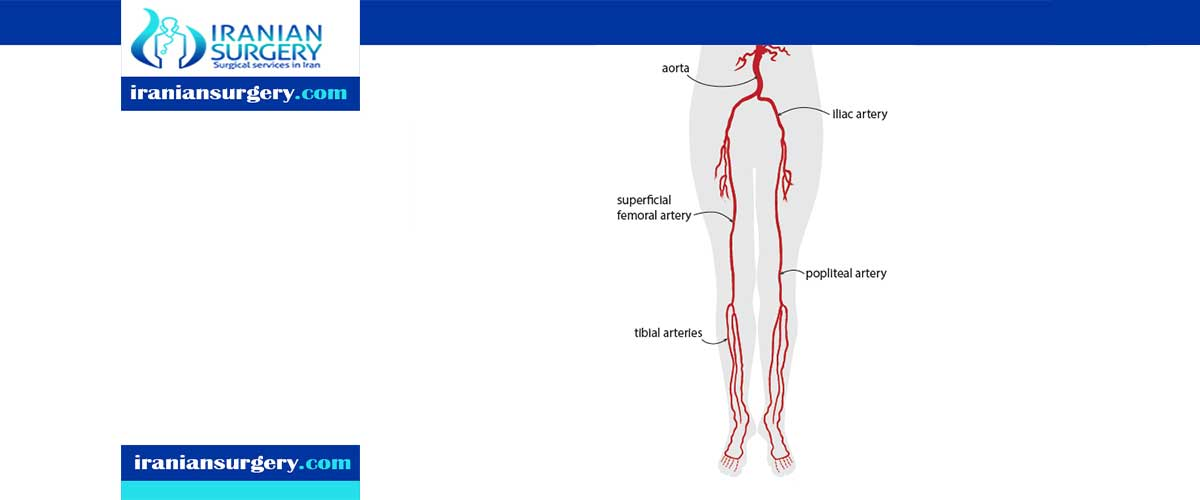 peripheral angioplasty procedure in Iran