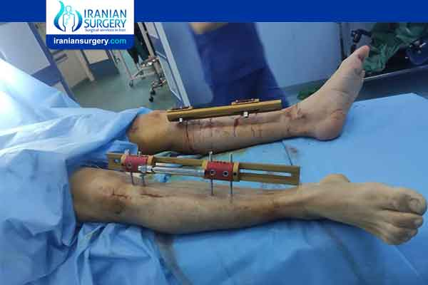 Limb Lengthening Surgery-External Fixators