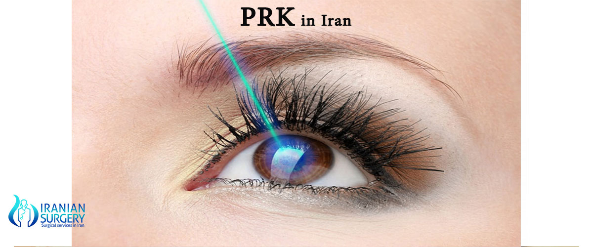 prk cost in iran