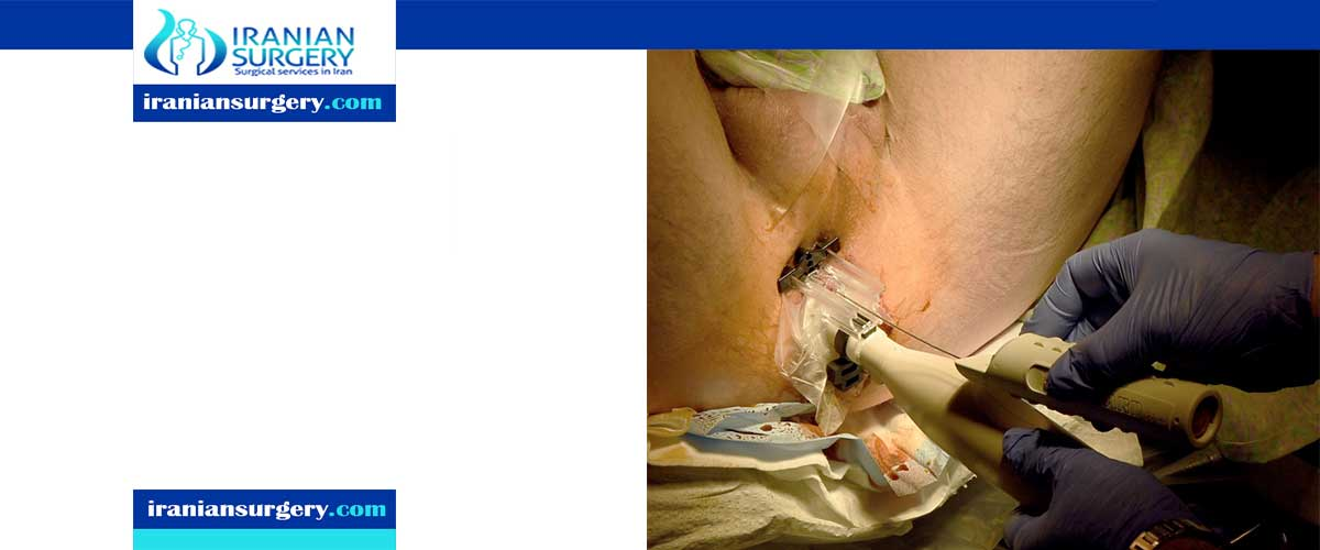 prostate biopsy complications