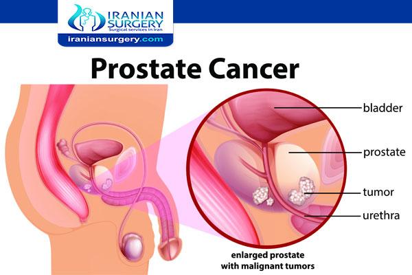 سرطان البروستات المرحلة الرابعة علاج سرطان البروستاتا المرحلة الرابعة طرق الجديد و کیفیة علاج