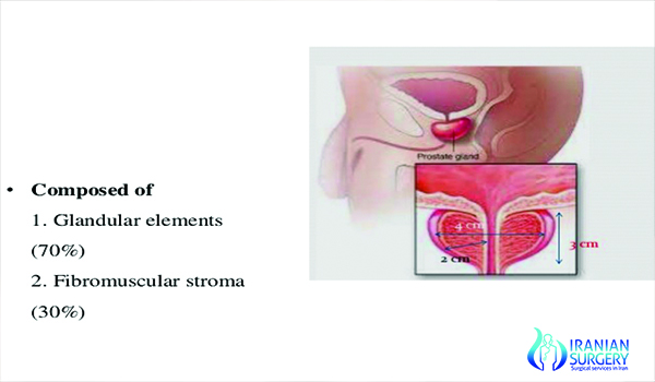 Prostectomy Surgery In Iran Prostectomy Recovery Guide Iranian