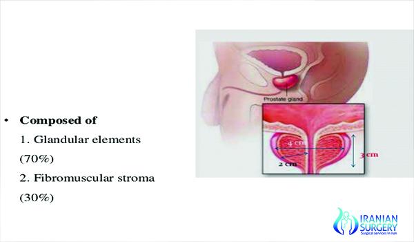 Prostectomy in iran