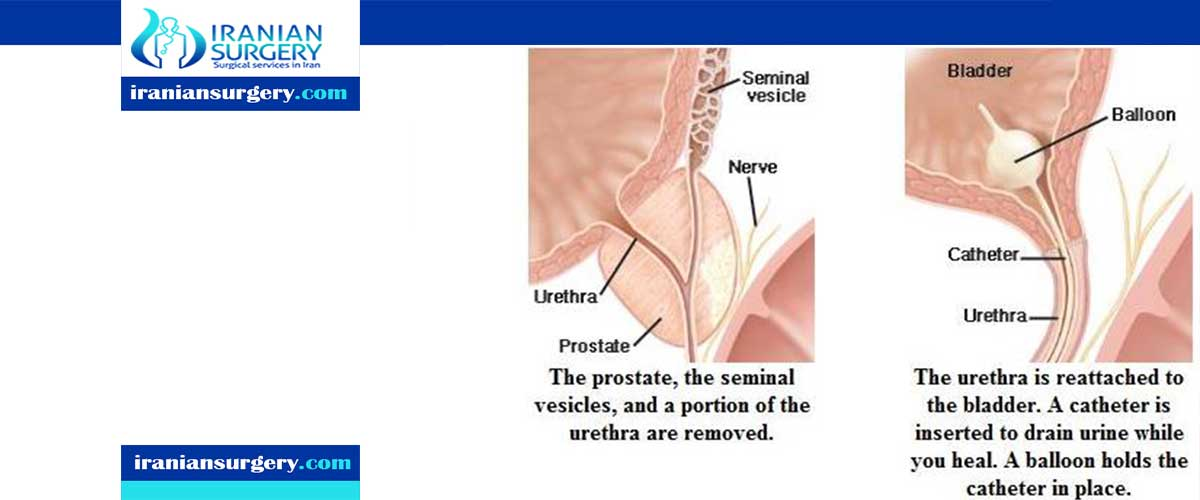 prostatectomy complications