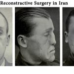 Reconstructive surgery in Iran
