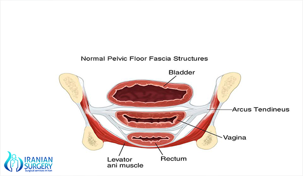 rectocele-repair-surgery-in-iran