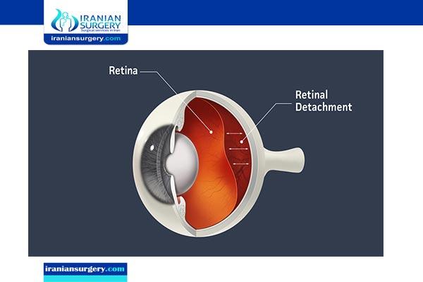 retinal detachment in iran