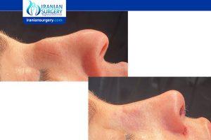 best revision rhinoplasty iran