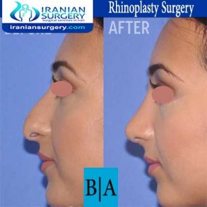 dr shahoon rhinoplasty surgery