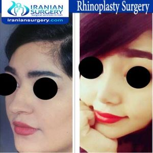 rhinoplasty surgery Dr Moslehi