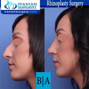 dr shahoon rhinoplasty surgery2