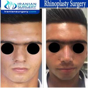 rhinoplasty surgery2 Dr Moslehi