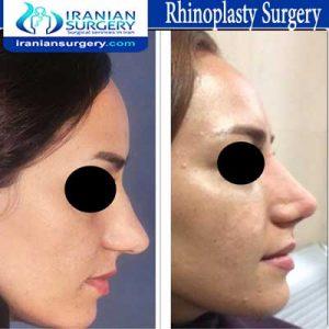 rhinoplasty surgery3 Dr Moslehi