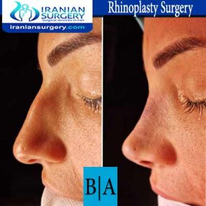 dr shahoon rhinoplasty surgery3