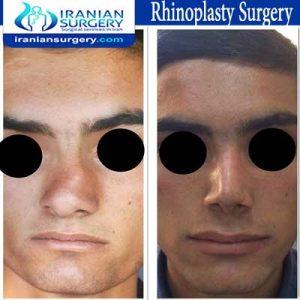 rhinoplasty surgery4 Dr Moslehi