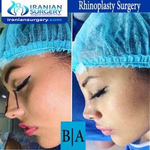 dr shahoon rhinoplasty surgery4