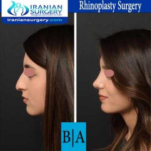 dr shahoon rhinoplasty surgery5