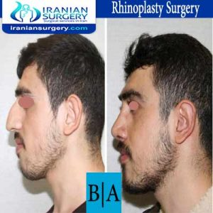 dr shahoon rhinoplasty surgery6