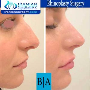dr shahoon rhinoplasty surgery7