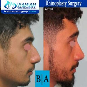 dr shahoon rhinoplasty surgery8