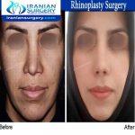 dr bastani nejad rhinoplasty surgery
