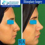 dr boromand rhinoplasty
