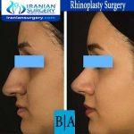 dr boromand rhinoplasty2