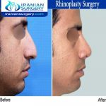 dr bastani nejad rhinoplasty surgery2
