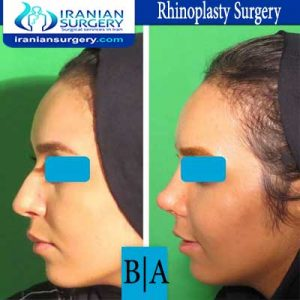 dr boromand rhinoplasty3