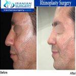dr bastani nejad rhinoplasty surgery3