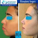dr boromand rhinoplasty4