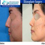 dr bastani nejad rhinoplasty surgery4