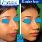 dr boromand rhinoplasty5