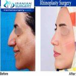 dr bastani nejad rhinoplasty surgery5