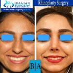 dr boromand rhinoplasty6