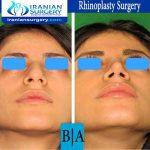 dr boromand rhinoplasty7