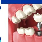 The procedure of dental implant