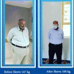 sleeve surgery dr hosseini3
