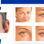 Type of eyelid surgery