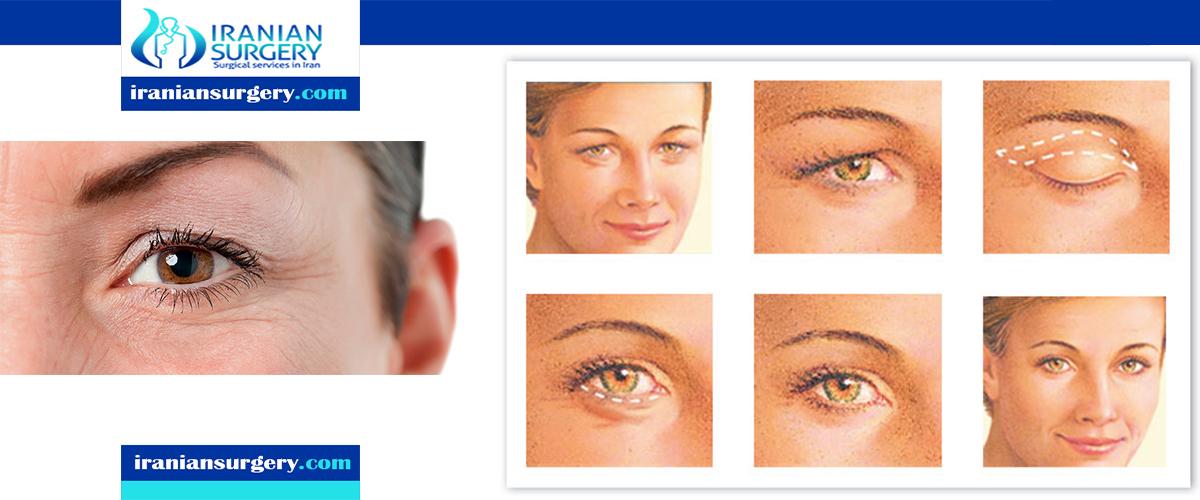 type of eyelid surgery