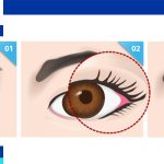 Cat eye surgery in Iran
