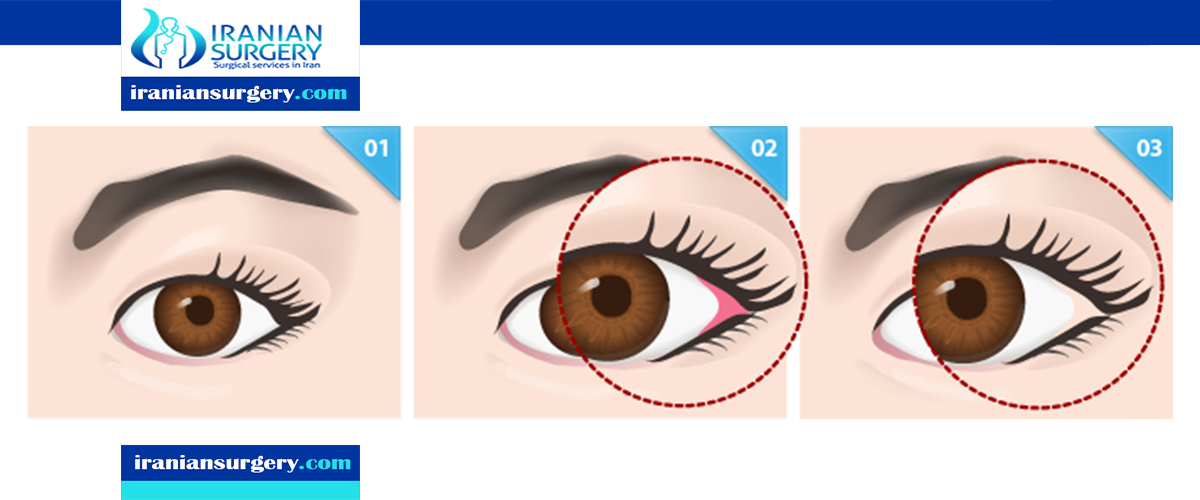 Canthoplasty in iran