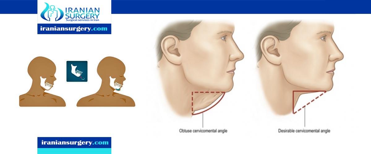 genioplasty surgery in iran