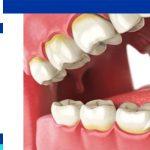 Teeth cleaningin iran