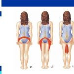 spinal disc herniation causes