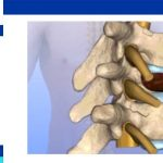 spinal tumor treatment
