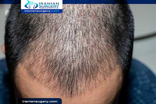 الیوم العاشر بعد عملیة زراعة الشعر